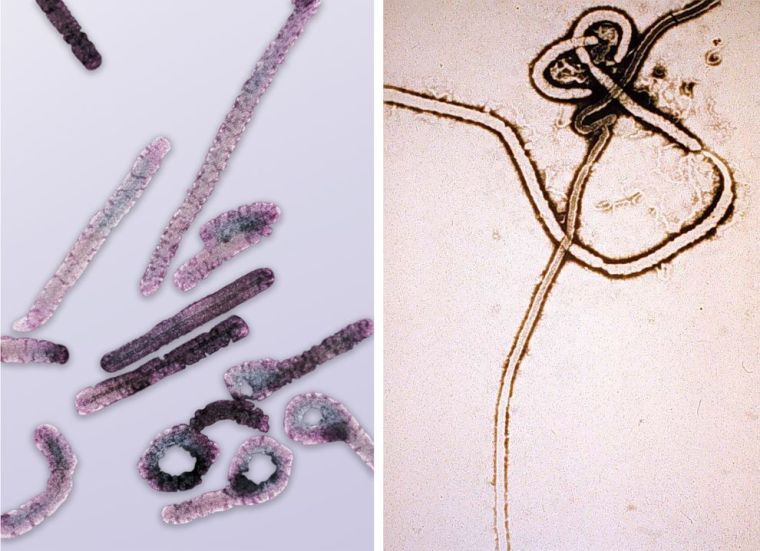 Successful Marburg Virus Treatment Offers Hope for Ebola Patients