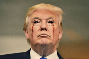 trump-his-eyes-bleeding-1