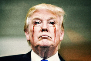 trump-his-eyes-bleeding1